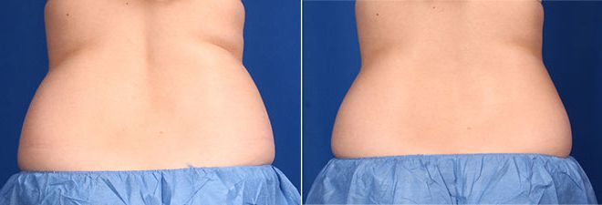 CoolSculpting Flanks before and after