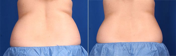 CoolSculpting - Flanks