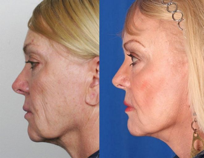 mini-facelift-before-after-1-5-lg