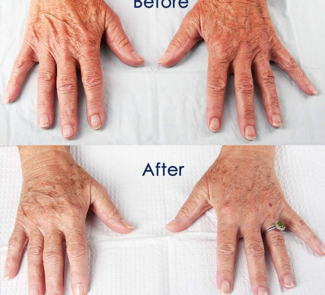Hand Rejuvenation, Don't let your hands give away your age!