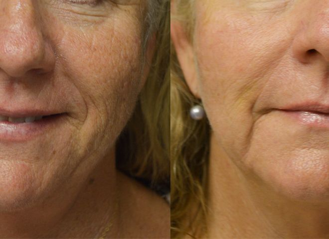 PicoWay Resolve Laser Before and After