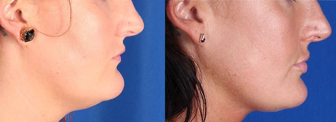 CoolSculpting for the Chin