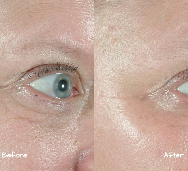 Sublative for fine lines and wrinkles