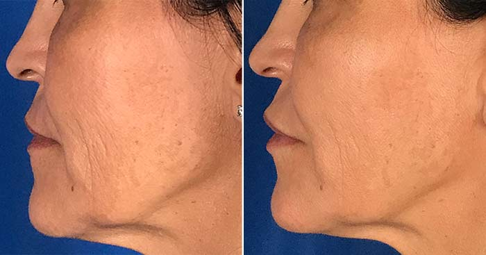 Restylane Defyne results in the lips, cheek, and nasolabial folds