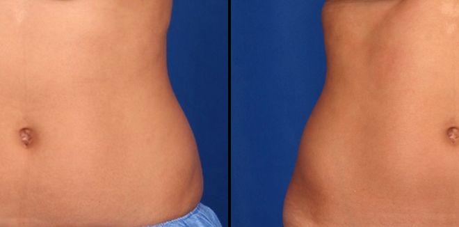 CoolSculpting results after 2 treatments on the lower abdomen