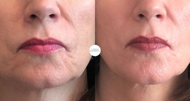 Sculptra for lines around the mouth