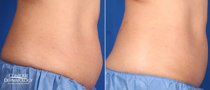 Actual Contour Dermatology Patient, CoolSculpting Flanks Left Before After
