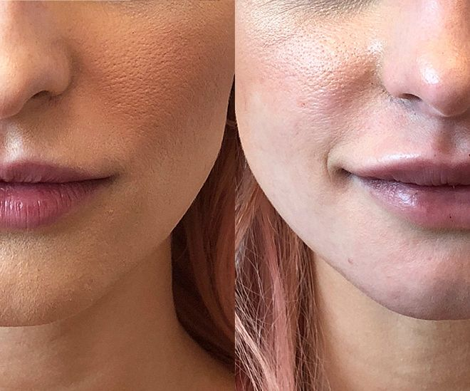 Restylane Lyft results for the lips
