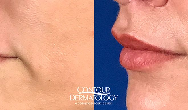 Lip Lift, 40 Year Old Female, 1 Month After