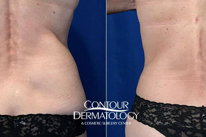 Actual Contour Dermatology Patient CoolSculpting Before and After – Flanks