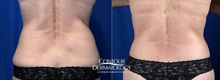 Actual Contour Dermatology Patient CoolSculpting Before and After - Flanks