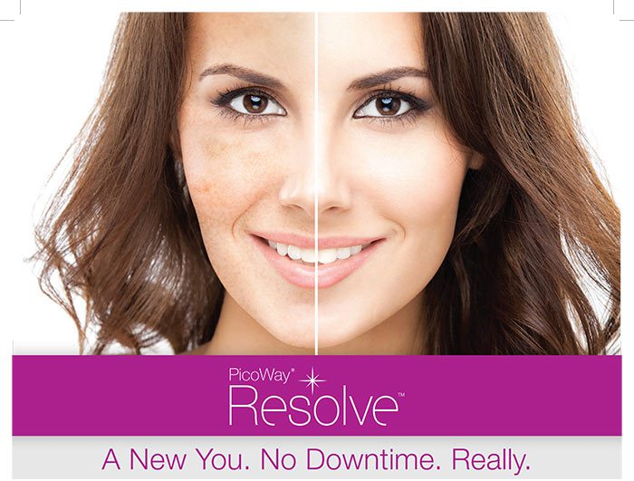 Brown spots and areas of uneven pigmentation become things of the past with PicoWay.