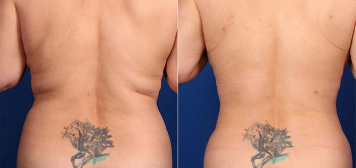 Liposuction Flanks Before & After