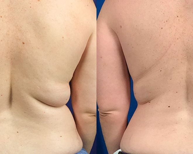 Before and after results of tumescent liposuction