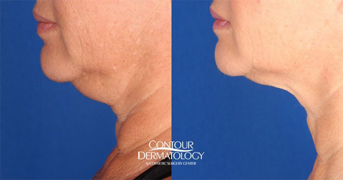 CoolSculpting in combination with VelaShape III