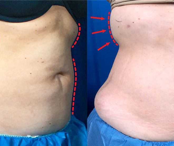One day post treatment liposuction results of the abdomen and bra fat