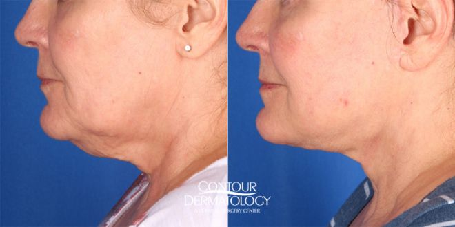 Chin Liposuction with Mini Facelift combination treatment