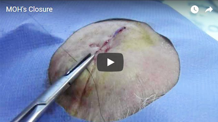 Mohs Surgery Closure, click to watch video