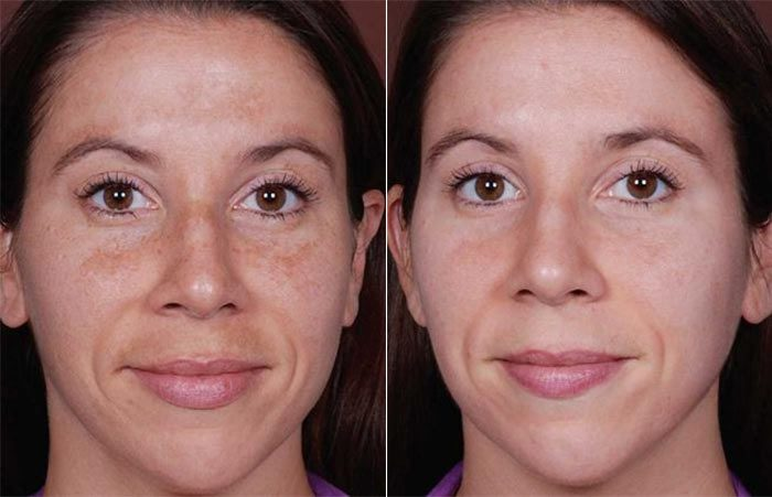 Melasma treatment results with Obagi NuDerm Kit before and after