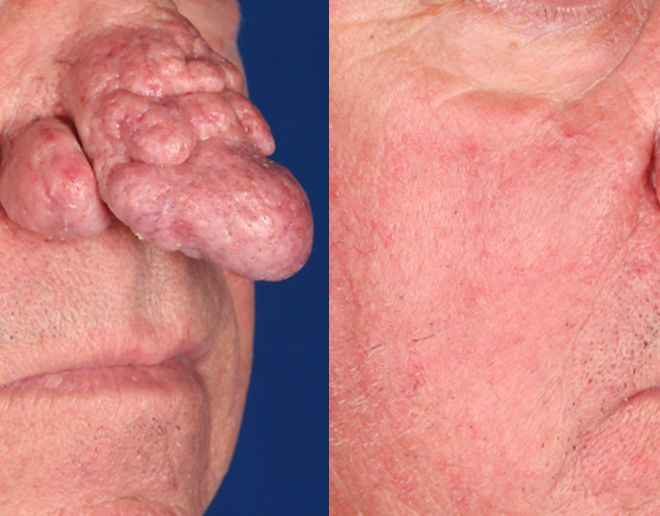 Rhinophyma after 3 Fractional CO2 Laser treatments