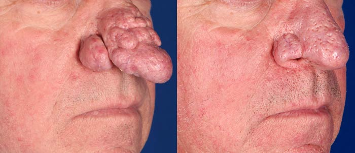 Rhinophyma after three Fractional CO2 Laser treatments