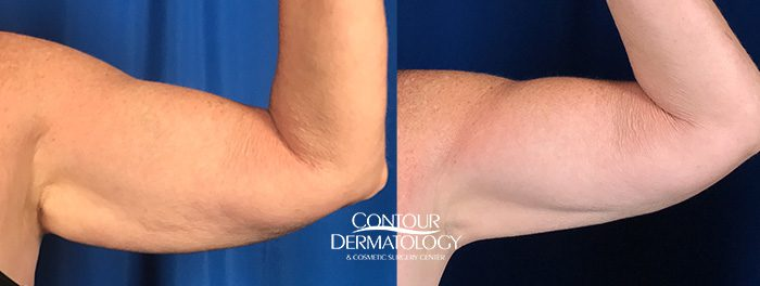 CoolSculpting treatment for arms, 8 months after