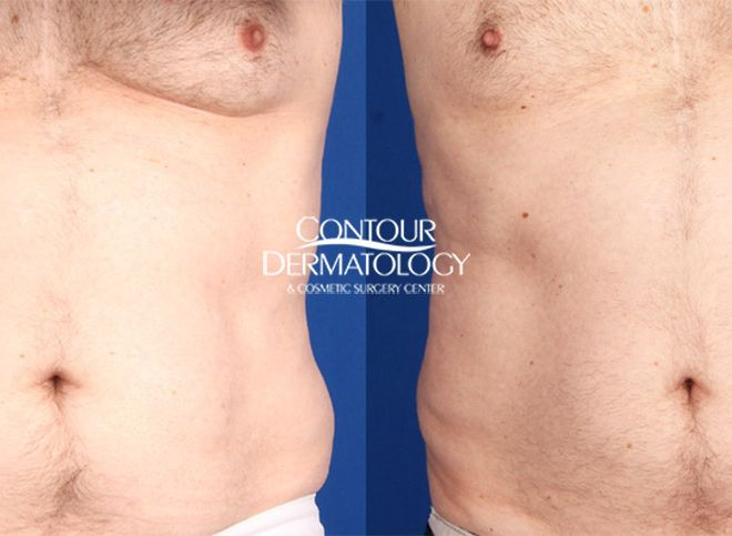 CoolSculpting Abdomen and Flanks