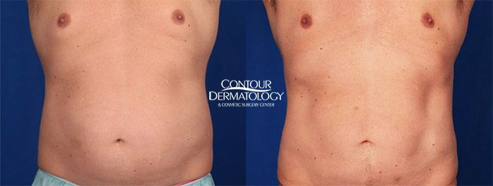 CoolSculpting Abdomen, Flanks, before and after