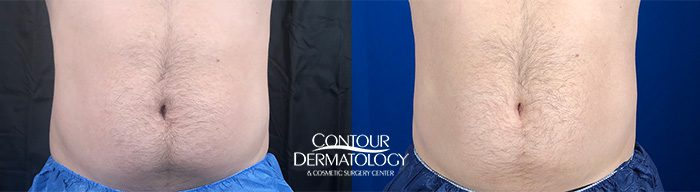 CoolSculpting Abdomen and Flanks, One Treatment