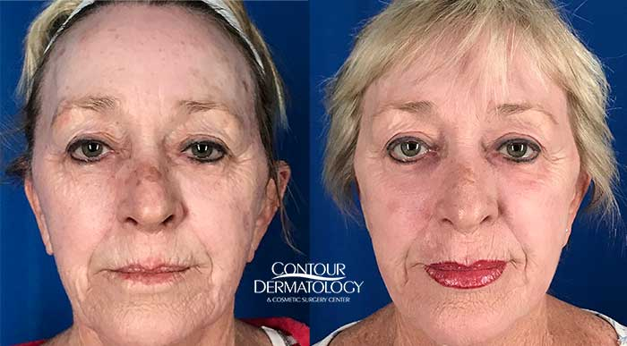 CO2 Laser Resurfacing Full Face, 6 months post treatment