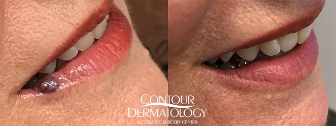 Venous Lake Treatment with Excel V Laser, 6 months after