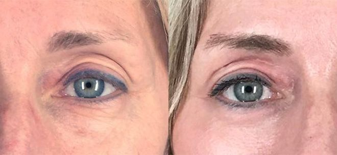 Lower Eyelid Surgery (Lower Bleph) plus CO2 Laser Resurfacing around Eyes, 1 month after