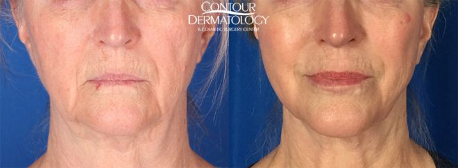 Mini Facelift with CO2, 8 Months Post Treatment