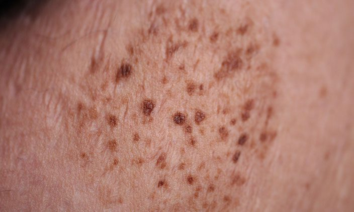 Another name for Nevus Spilus (nevi plural) is Speckled Lentiginous Nevus. The spots can be flat or raised.