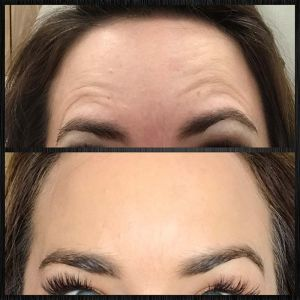 Botox treatment for worry lines above eyebrows
