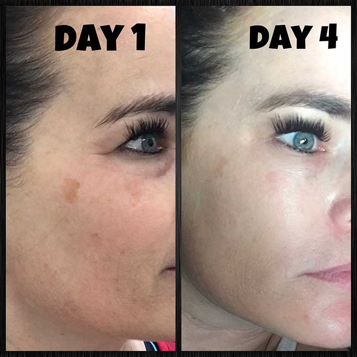 Chemical Peel on Face, day 1 to day 4 progression