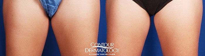 CoolSculpting, Inner Thighs, 2 Treatments