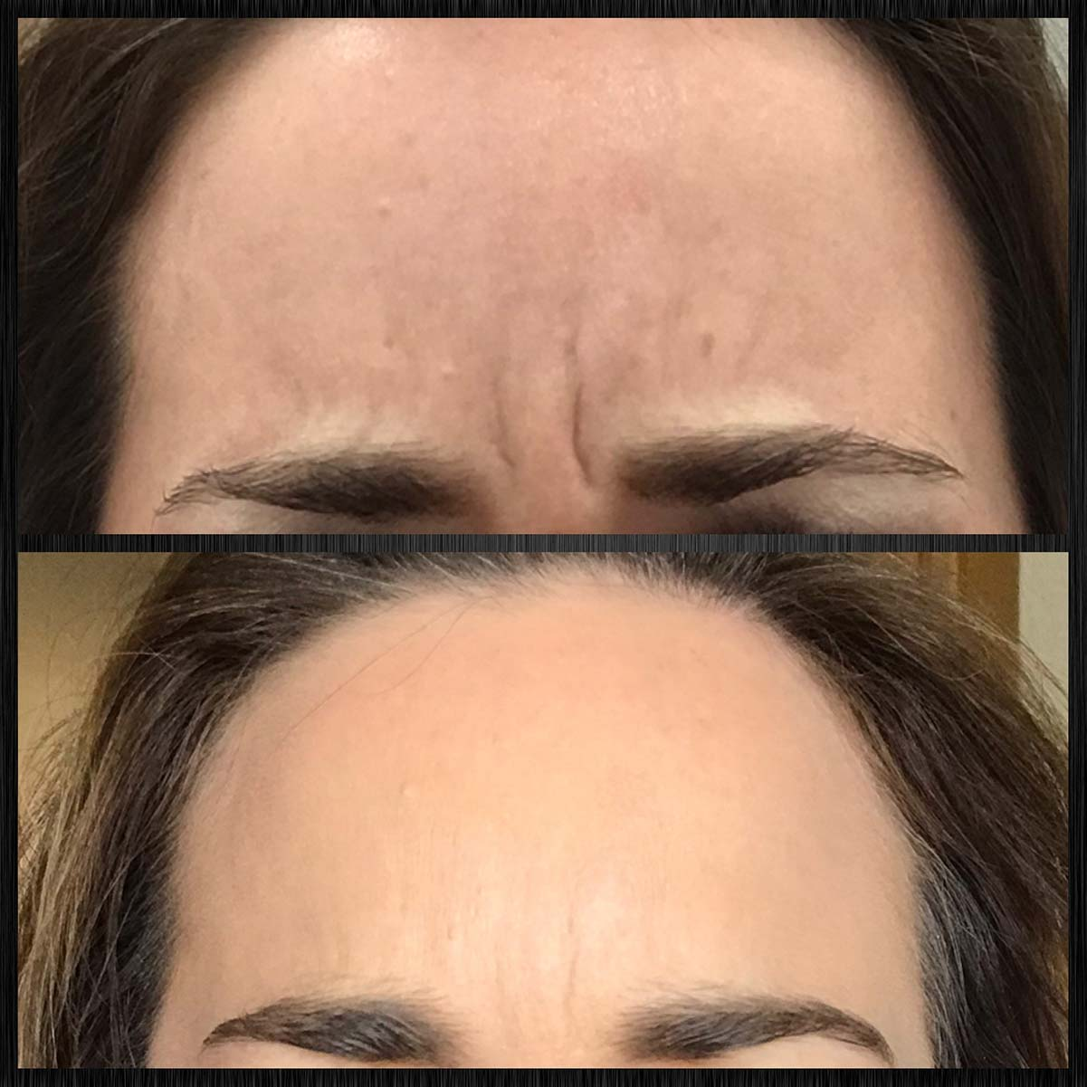 Botox treatment for frown lines (11s) between eyebrows.