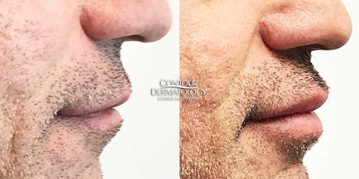 Restylane Defyne, male patient lips