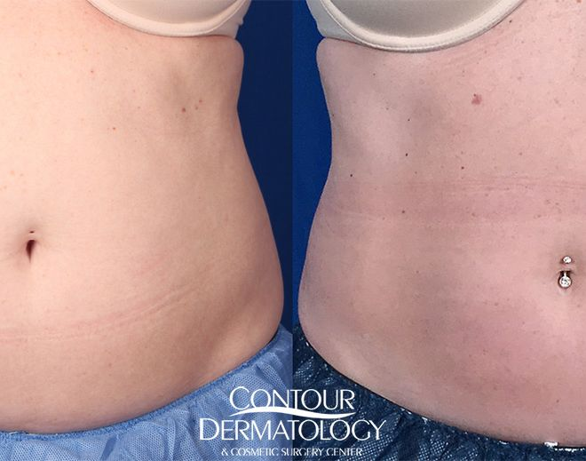 CoolSculpting for upper and lower abdomen After photo is 6 months post treatment