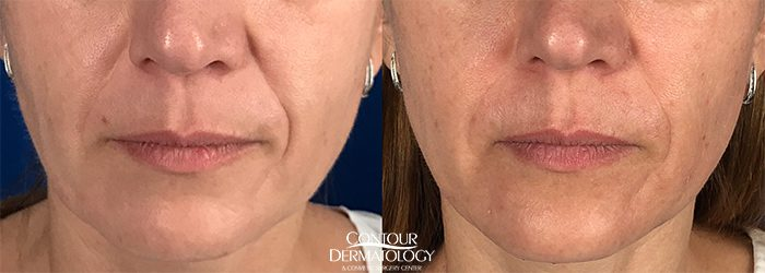 Restylane Defyne for nasolabial folds