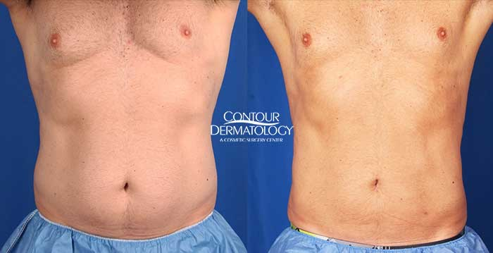Liposuction adbomen/flanks