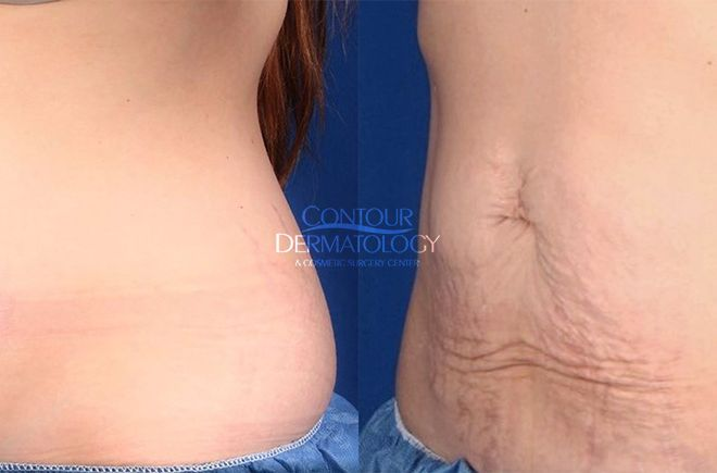 2 Treatments of CoolSculpting and VelaShape on Abdomen