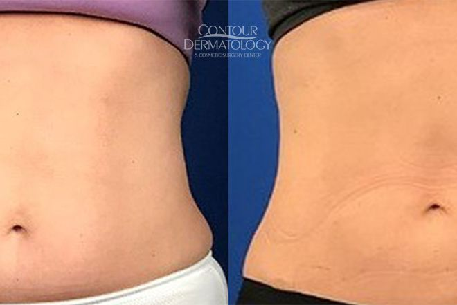 CoolSculpting for Lower Abdomen