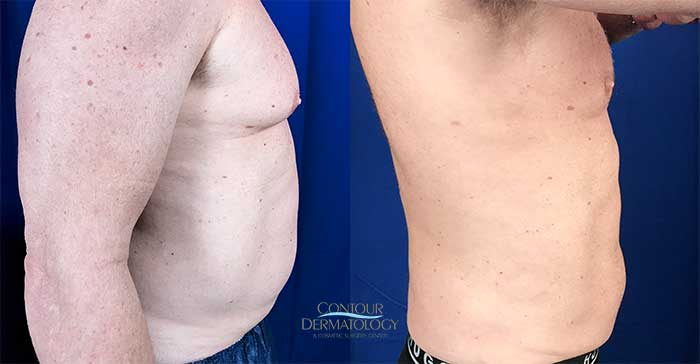 Liposuction on abdomen, chest, flanks, and axillae (armpit area)