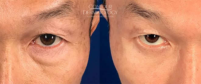 Lower Eyelid Surgery, 1 month After