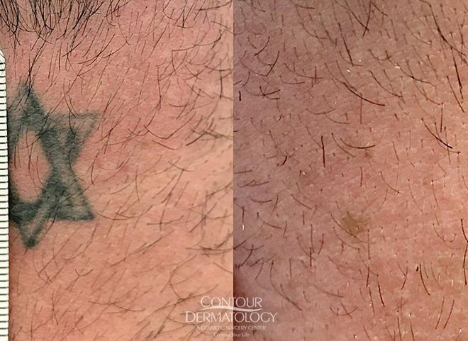 PicoWay Laser Tattoo Removal, Back of Neck