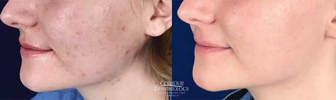 Accutane and SmoothBeam Laser