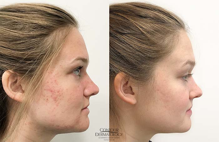 Accutane for Acne Treatment
