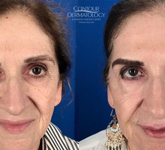 Full Face CO2, 3 Months Post Treatment